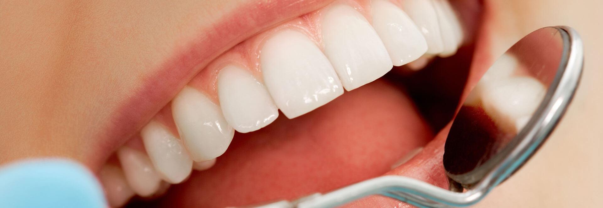 Closeup of examining teeth before using porcelain inlays and onlays